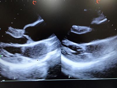 心臓超音波(心エコー)検査