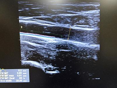頸動脈超音波(頸動脈エコー)検査